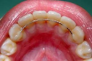 Behind teeth retainer
