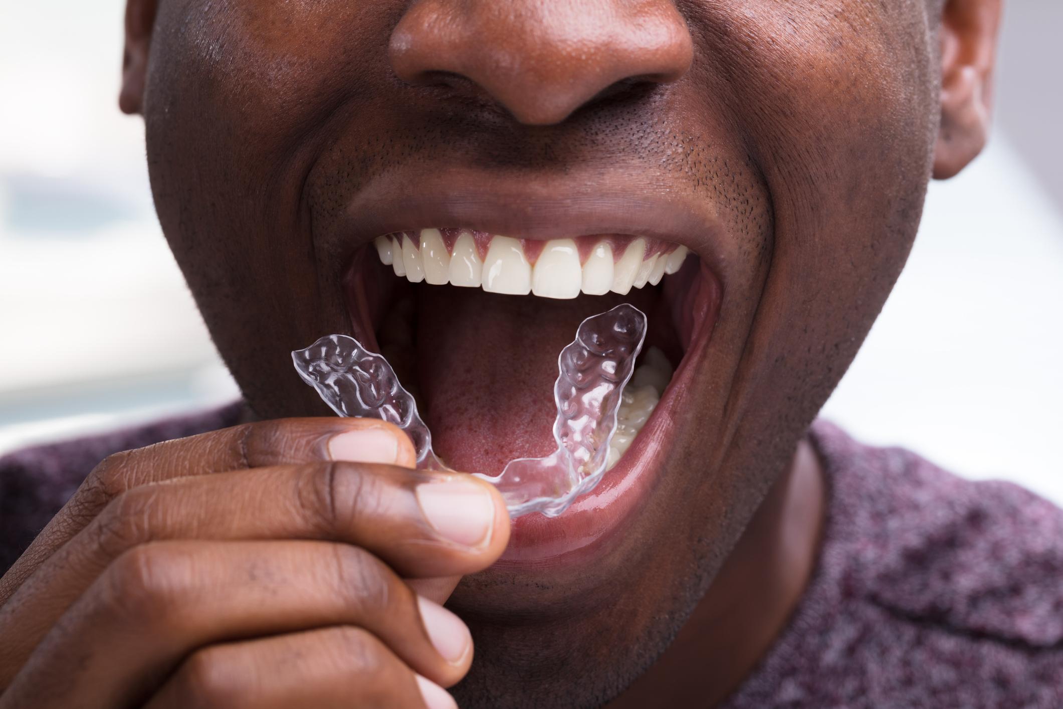 Man Adjusting Transparent Aligners In His Teeth